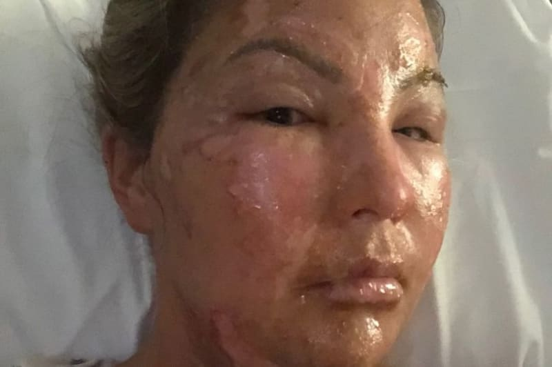 Woman Suffers Burns As Hand Sanitiser Explodes As She Lights Candle In Texas