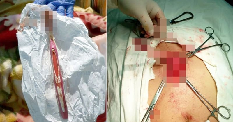 Toothbrush Removed From An Indian Man's Stomach After He Swallowed It While Brushing
