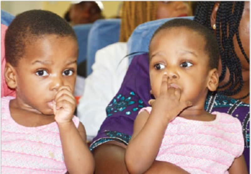 Conjoined Twins With One Liver Successfully Separated In Abuja Hospital