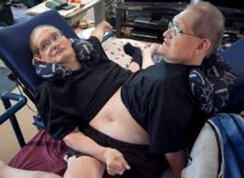 World's Longest-Living Conjoined Twins Die At 68