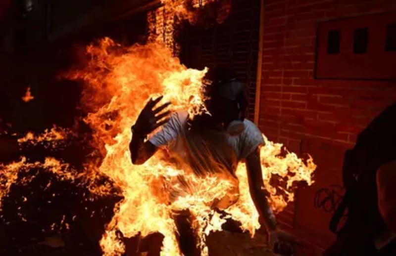 Kano Student Sets Himself On Fire Over Inability To Pay NECO Fees