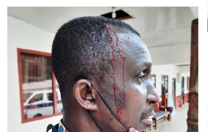 Ghanaian Students Break Invigilator's Head Over Strict Supervision  (Graphic)