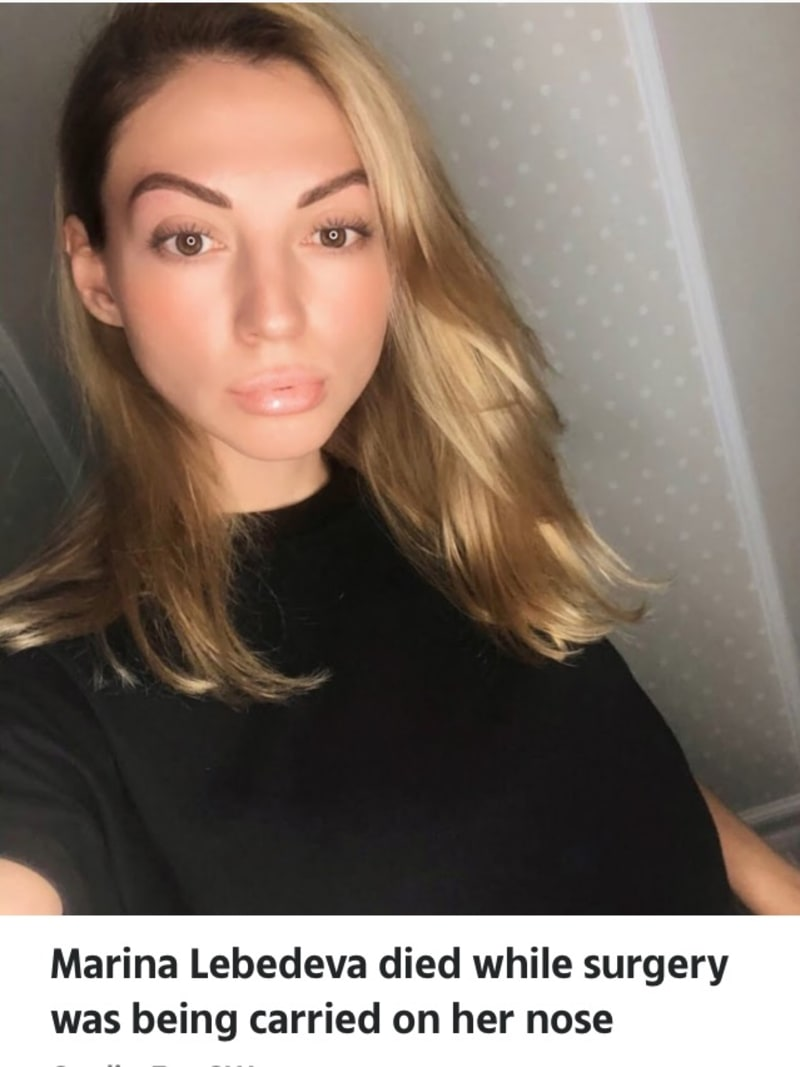 31-Year-Old Russian Influencer Dies During Nose Job Operation At Top Clinic