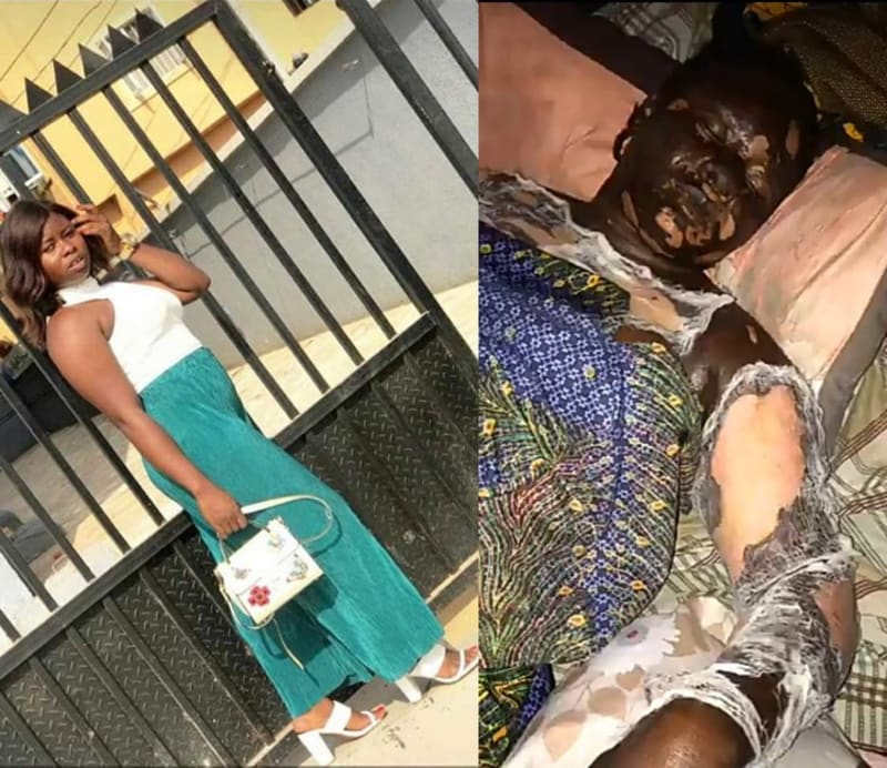 Lady Burnt While Answering Call Close To Her Cooking Gas, Dies (Graphic Pics)