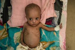 Hjælp børnene, der sulter på Afrikas Horn