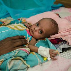 Millioner av barn på randen av sult i Øst-Afrika