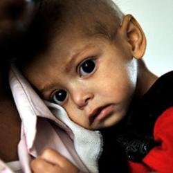 Humanitær katastrofe i Yemen