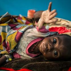 Sult i Afrika - Børn lider af underernæring