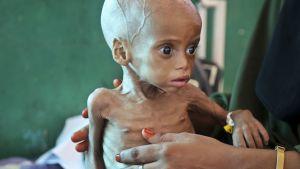 Jemen er i nød!