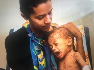 Hjælp børn som sulter i Venezuela