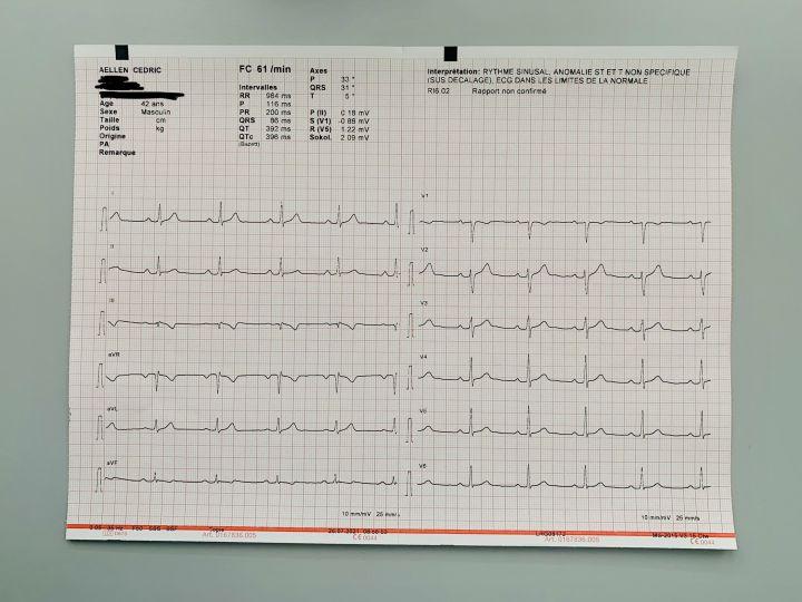 My printed electrocardiogram