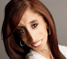 Lizzie Velasquez Speaker Bio