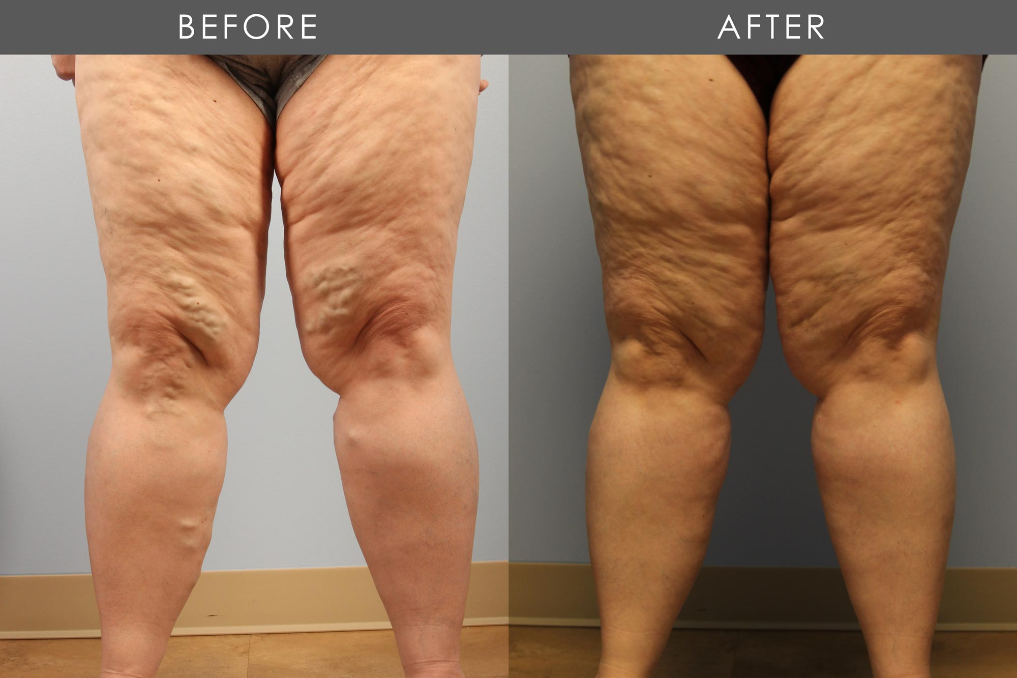 Allure Medical - Varicose Veins - Before & After Treatment