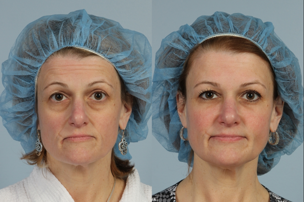 Allure Medical - Before & After Treatment