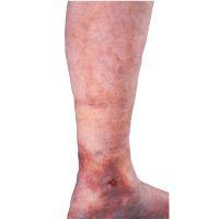 Varicose Vein Treatments - Services | Allure Medical