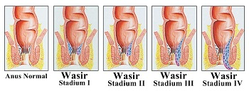 Gambar ini menunjukkan ambeien internal stadium 1-4