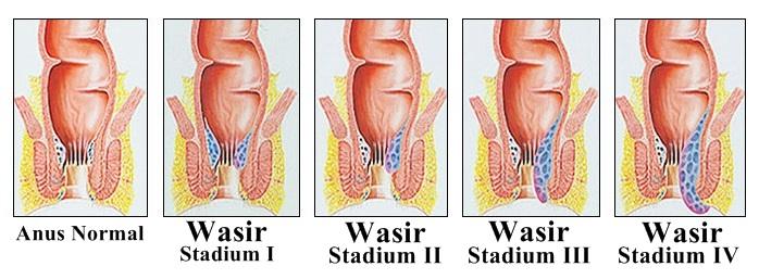 Gambar Stadium Penyakit Ambeien atau Wasir