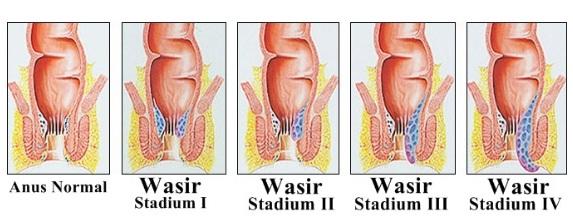 Ambeien atau wasir stadium 1 - 4