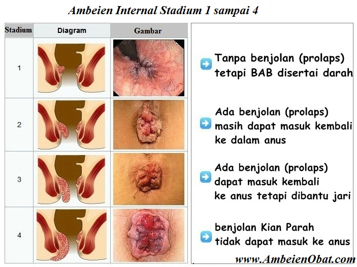 Obat Ambeien Alami internal stadium 1-4