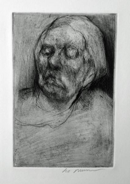 Alzheimer's Woman