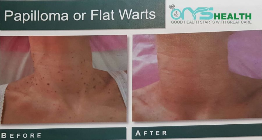 Mole Removal Sydney CBD | Natural Removal No Cutting & Scar Free‎
