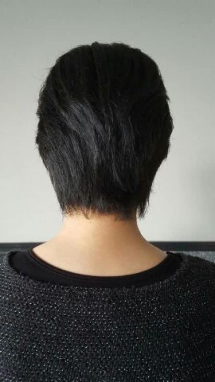 細毛の原因