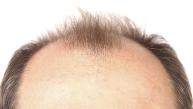 抜け毛が多い気がする…… その原因と対策とは?