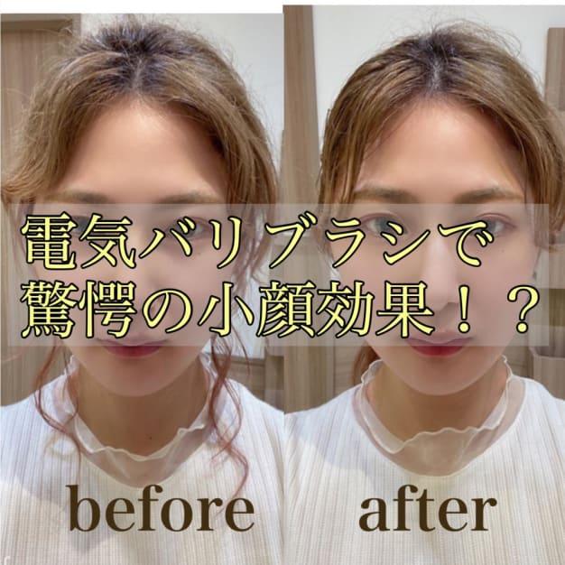 【究極のおこもり美容】電気バリブラシ(DENKIBARI BRUSH)で誰でも驚愕の小顔効果が得られる!?