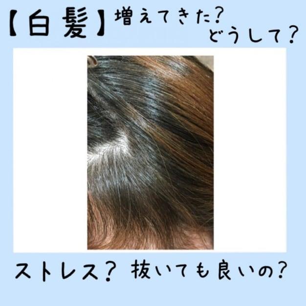 【白髪】増えてきた?どうして?