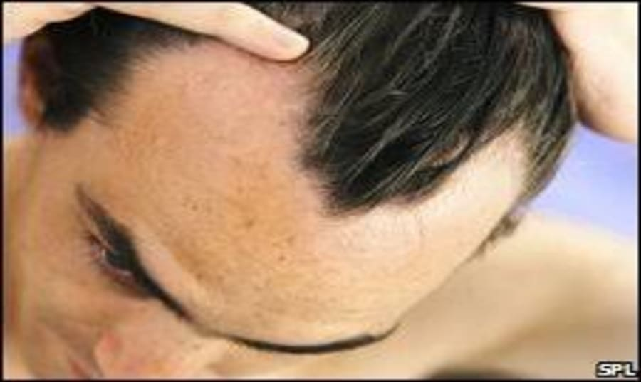 best-genetic-treatment-for-hair-loss Image
