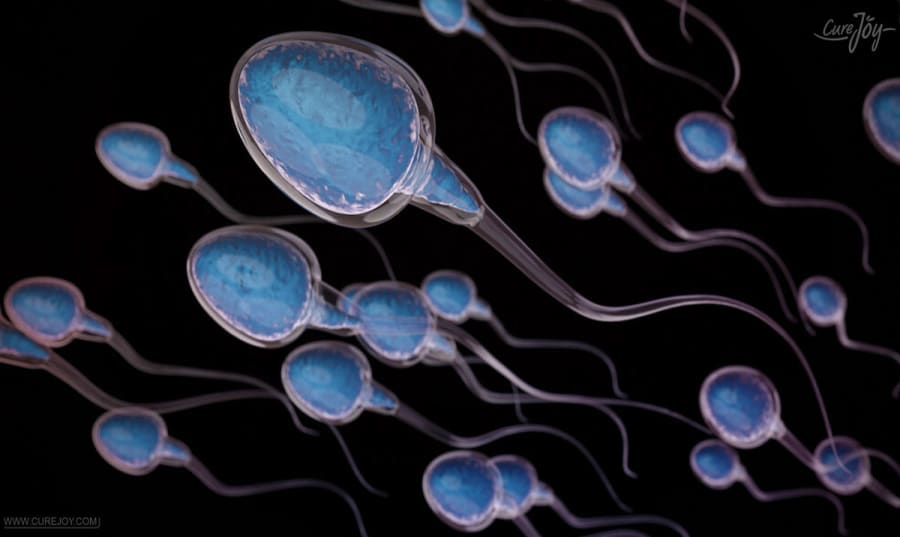 cost-sperm-dna-fragmentation-test-india Image
