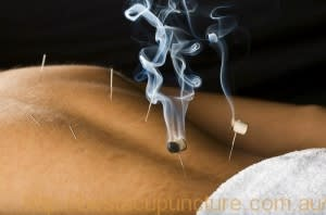 C:\fakepath\BusinessPhoto1_BestAcupuncture.jpg