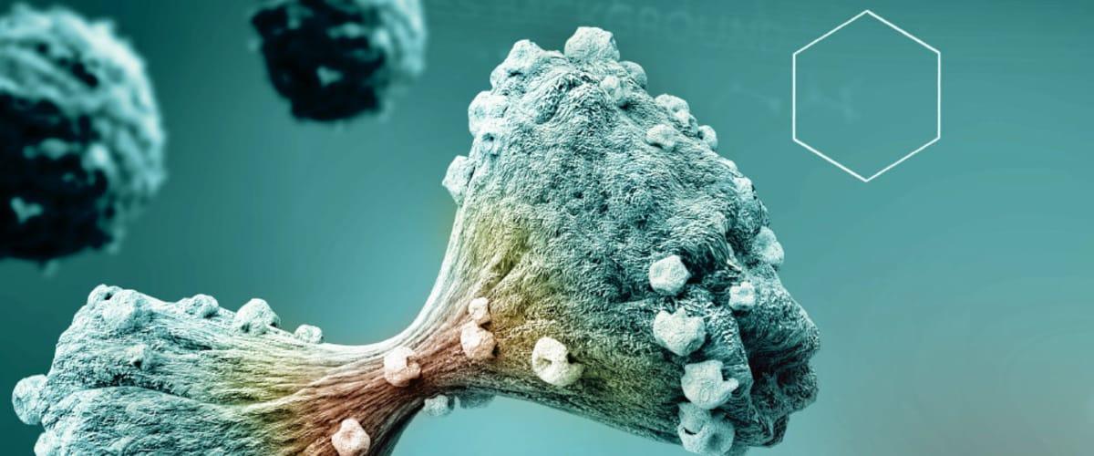 Onkologische Vollversorgung