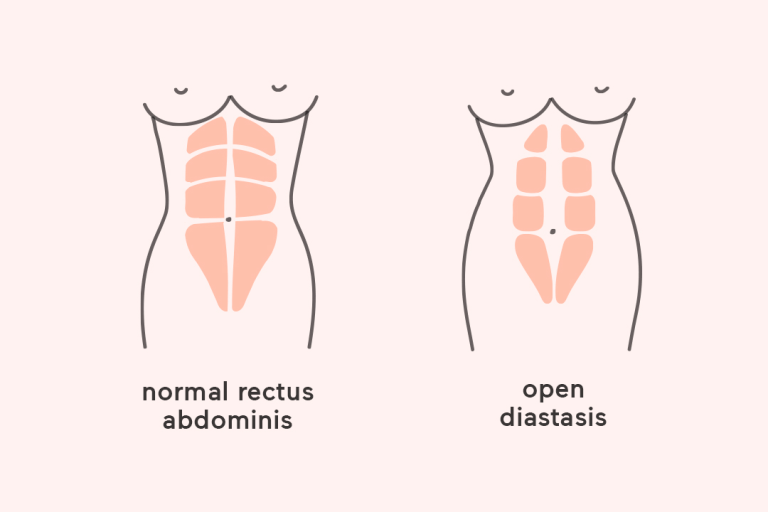 Everything You Need to Know About Diastasis Recti.