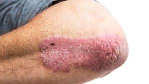 berbagai penyakit kulit psoriasis