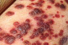 CBD membantu imun melawan virus bakteri dan kanker