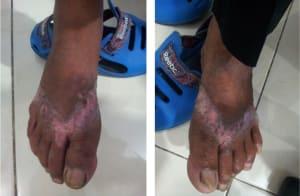 berbagai penyakit kulit, dermatitis