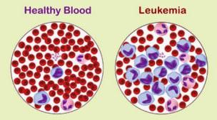 senyawa THC ganja mengobati leukemia