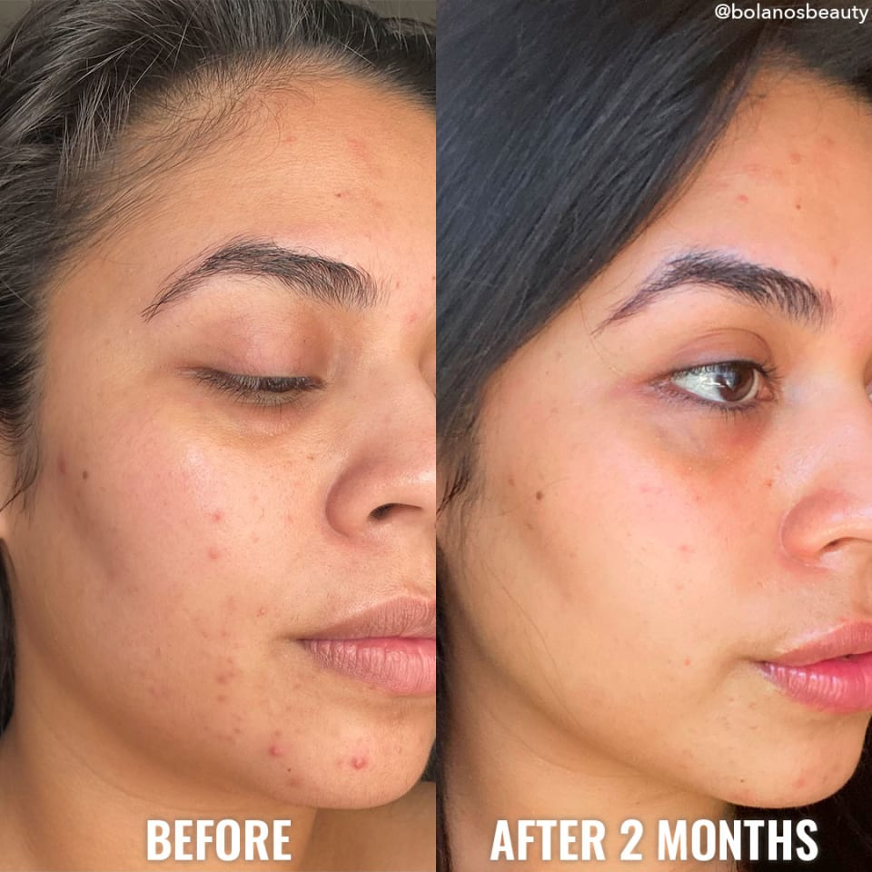 see a difference in your skin