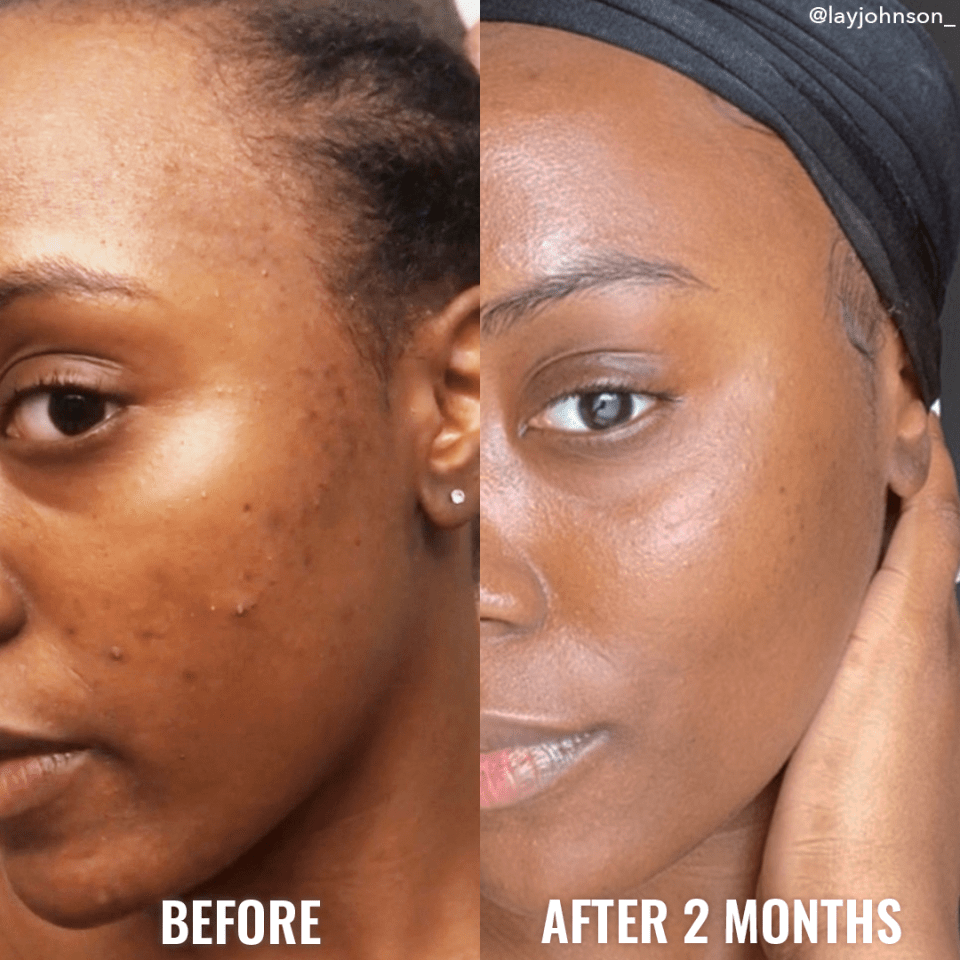 """""""Being a darker skinned person, I suffer from hyperpigmentation. Over the last 2 months, my skin has improved so much!"""""""