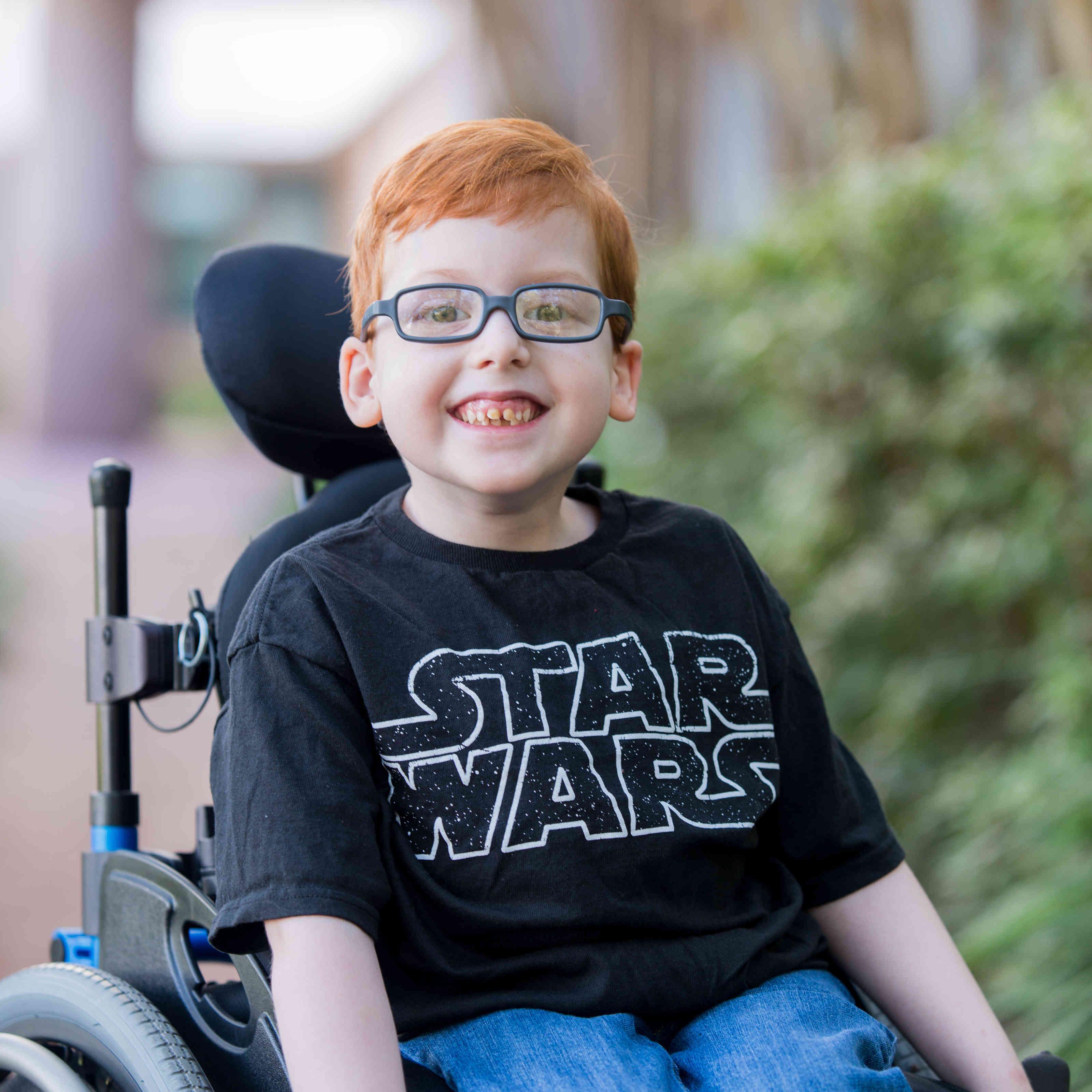 Wolfson Children's Hospital Spine Defects