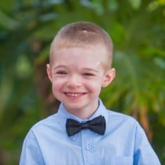 Wolfson Children's Hospital Craniosynostosis