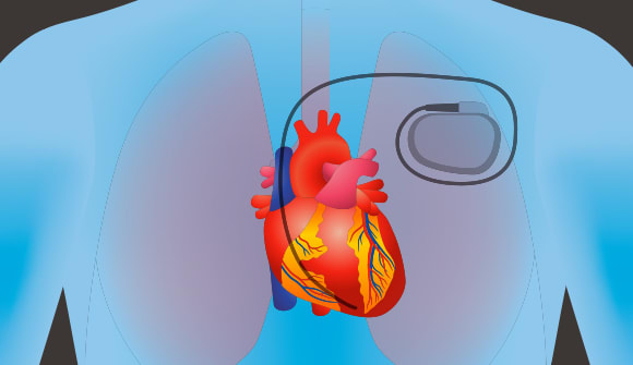 illustration of heart pacemaker