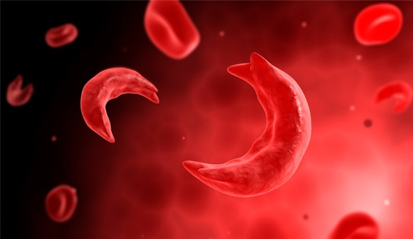 Sickle cell blood shapes
