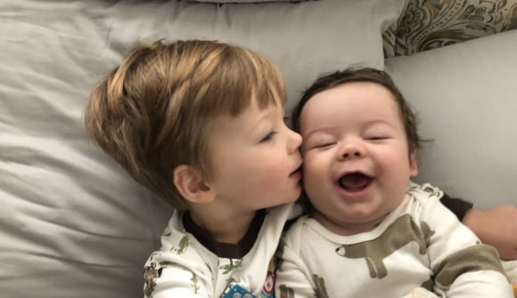brothers born with craniosynostosis