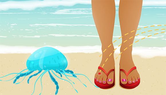 jellyfish_sting