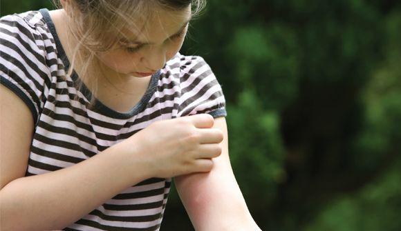 child scratching arm