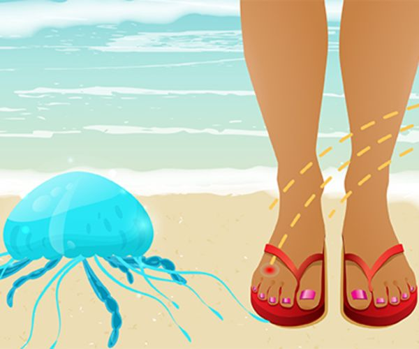 jellyfish_sting