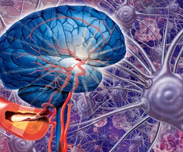 brain aneursym