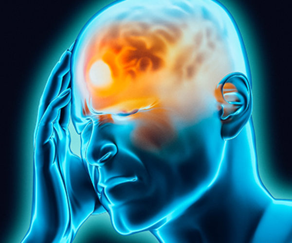 Migraines cause severe pain in your head.